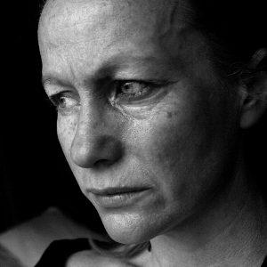 Lo sguardo del dolore - © Kelly Young - Fotolia.com