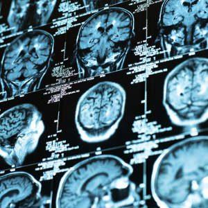 Terapia Cognitivo-Comportamentale per le Psicosi. - Immagine: © svedoliver - Fotolia.com