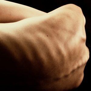 L'anoressia- Il corpo Invisibile. - Immagine: © deviantART - Fotolia.com