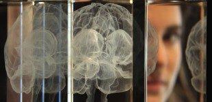 Morbo di Parkinson: la stimolazione cerebrale profonda
