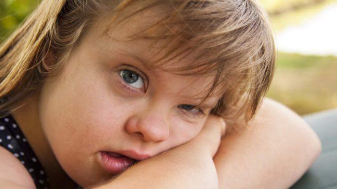 Catatonia nella sindrome di Down