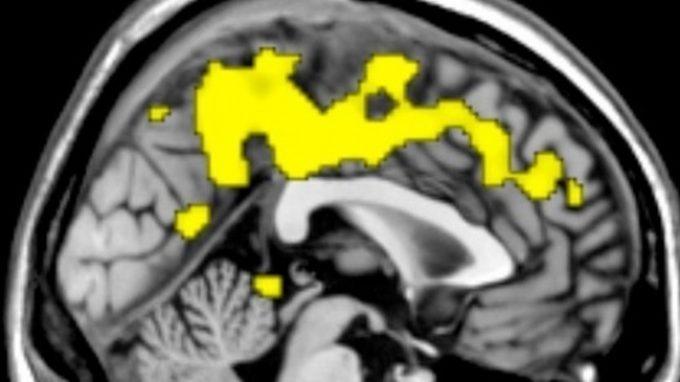 Il metodo caotico per interpretare le risonanze: sfruttare il caos per capire il cervello umano