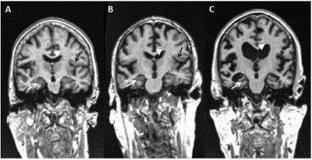 Malattia di Alzheimer il ruolo del corpo calloso nell evoluzione dei sintomi cognitivi e neuropsichiatrici _ FIG 2