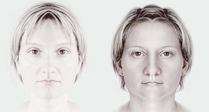 L'asimmetria di un'emozione: un'emiparesi facciale rende difficile il riconoscimento delle emozioni altrui