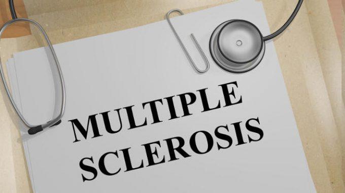 Nuovi sviluppi nella ricerca sulla sclerosi multipla