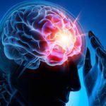 Cannabis per uso terapeutico nelle epilessie farmaco resistenti