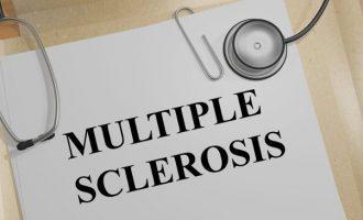 La tDCS nel trattamento dei sintomi cognitivi dei pazienti con Sclerosi Multipla