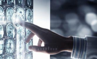 L'uso delle tecniche di neuroimmagine nella scelta del trattamento della depressione