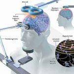 La stimolazione magnetica transcranica TMS - Introduzione alla psicologia
