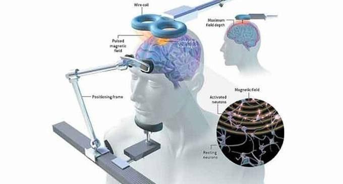 La stimolazione magnetica transcranica (TMS) – Introduzione alla Psicologia