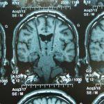 Deep brain stimulation gli effetti sulla qualità di vita nei pazienti affetti da Parkinson