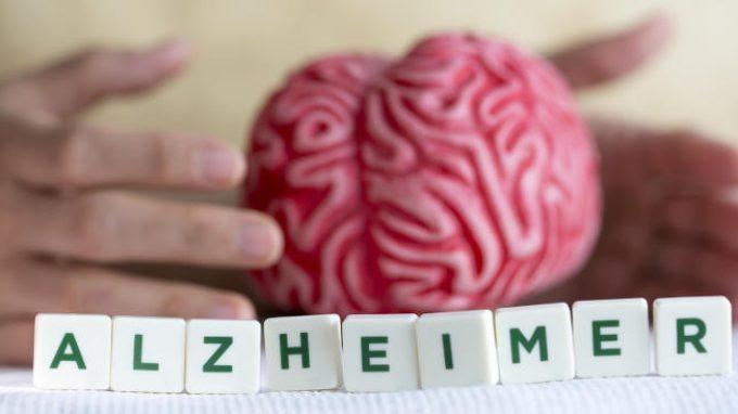 Lo sviluppo del morbo di Alzheimer: il dibattito è ancora aperto