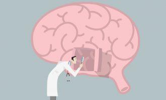 Scoperti particolari segmenti di DNA che causerebbero la morte dei neuroni nel Morbo di Alzheimer