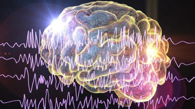 Epilessia: le nuove frontiere del trattamento