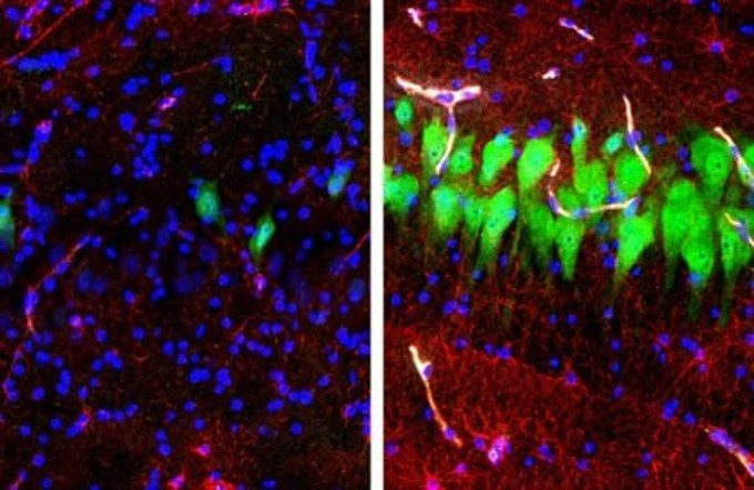 Resurrezione cerebrale il primo esperimento su cervelli di maiale img