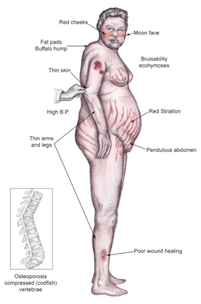 Sindrome di Cushing patologia endocrinologica e sofferenza psicologica foto
