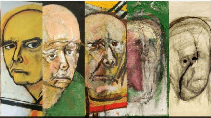 Gli occhi dell'Alzheimer